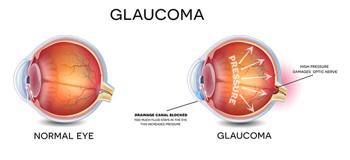 Glaucoma is the second leading cause of blindness in the United States. Only about half of the estimated three million Americans who have glaucoma are even aware that they have the condition. When glaucoma develops, typically there are no early symptoms and the disease progresses slowly. Fortunately early detection and treatment can help to preserve vision.